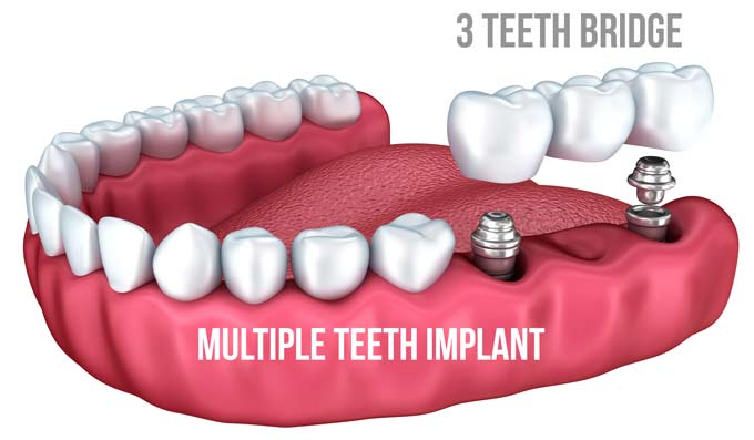 multi teeth implant cost