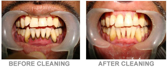 deep teeth cleaning before after