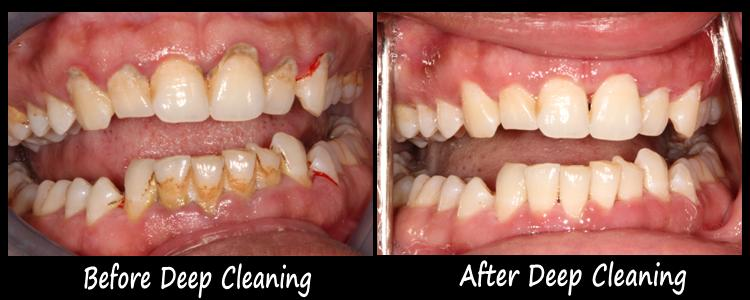 deep teeth cleaning before and after picture