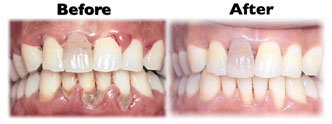 deep teeth cleaning before after scaling