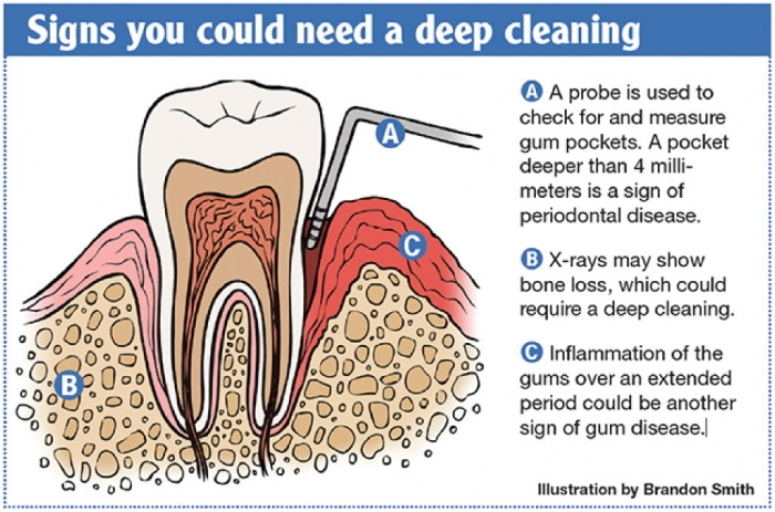 deep teeth cleaning